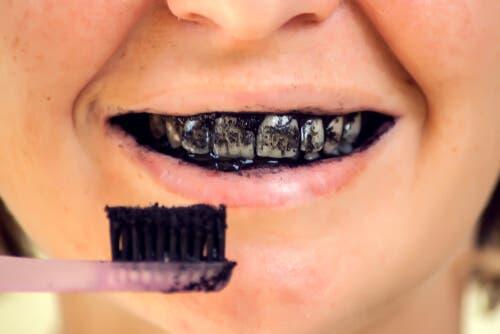 Risiken von Aktivkohle für die Mundgesundheit