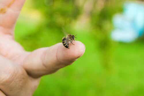 Bienenstiche richtig behandeln