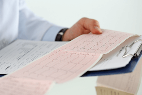 Nicht alle Herzrhythmusstörungen sind gleich gefährlich