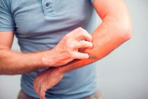 Symptome von Tungiasis