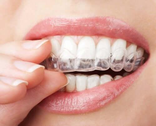 Zähne aufhellen: Vom Zahnarzt empfohlenes Bleaching zu Hause anwenden