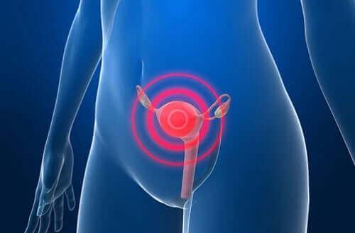 Gebärmutterkrebs - Behandlung nach der Diagnose