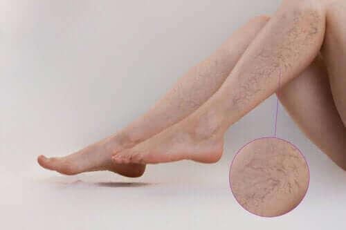 Sportliche Aktivität zur Vorbeugung von Krampfadern - einige Empfehlungen