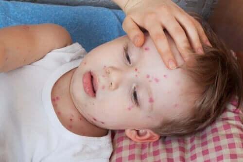 Behandlung von Nesselsucht bei Kindern