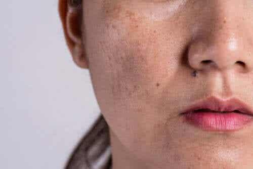 Ursachen für Hyperpigmentierung