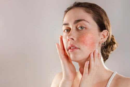 Hautreaktivität: Ursachen und Behandlungsmöglichkeiten