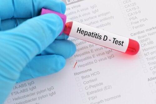 Hepatitis Test