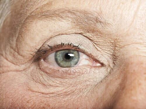 Pigmentflecken des Auges