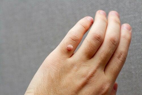 Warum bluten Warzen?