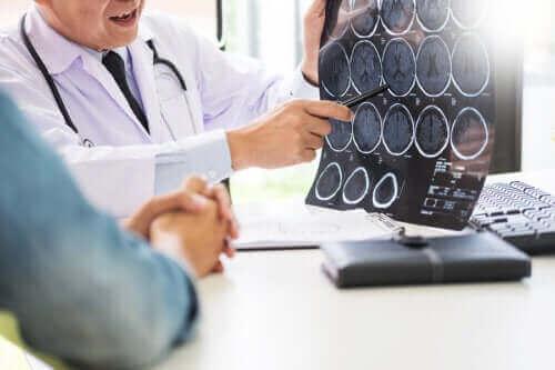 Neurogluten: Besteht ein Zusammenhang zwischen Gluten und neurologischen Erkrankungen?