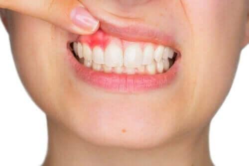 Hyaluronsäure in der Zahnheilkunde - Zahnfleischentzündung
