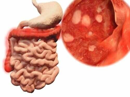 heruntergefallene Lebensmittel - Darmbakterien