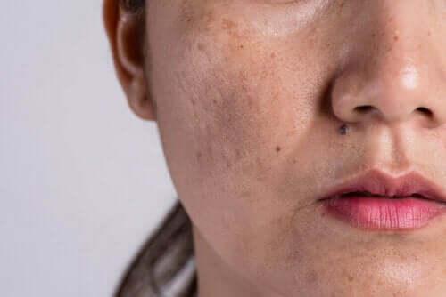 Hautveränderungen - Pigmentflecken