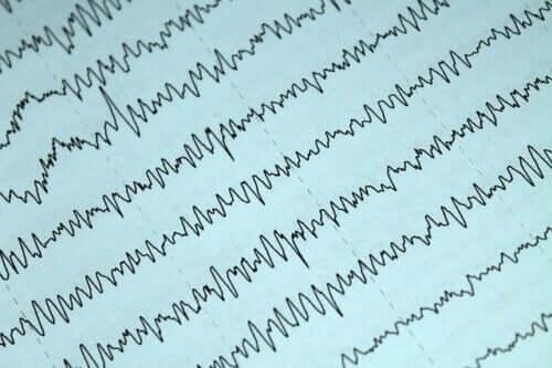 Wichtige Aspekte über Epilepsie und Stillzeit