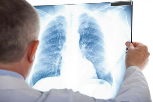 Wissenswertes über die atypische Lungenentzündung