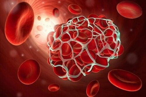 Risiko einer Thrombose durch hormonelle Kontrazeptiva