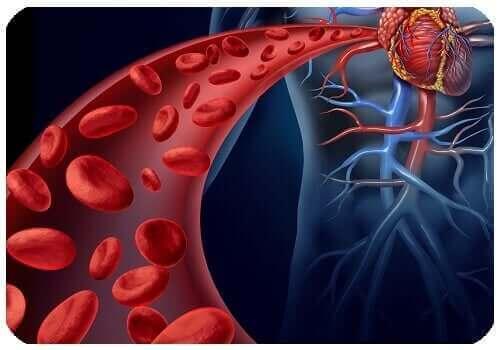 Bauchaortenaneurysma - Arterie