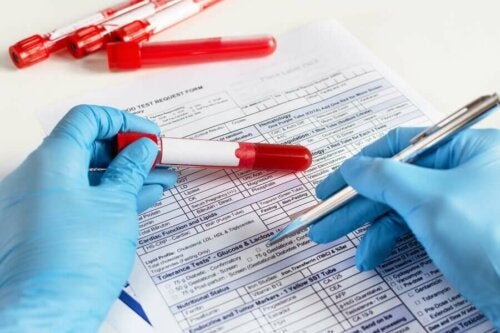 Blutabnahme - Arzt mit Blutprobe