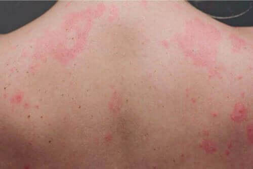 Chronische Urtikaria - geröteter Rücken