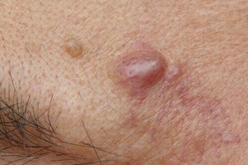 Epidermoidzysten - oberhalb der Augenbrauen