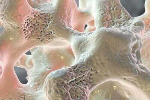 Folgen eines Kalziummangels - Osteoporose