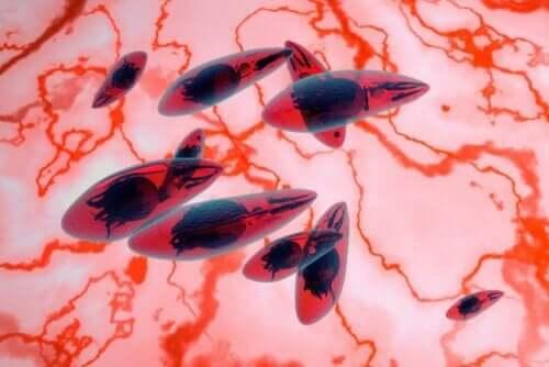 Okuläre Toxoplasmose - Parasiten unter dem Mikroskop