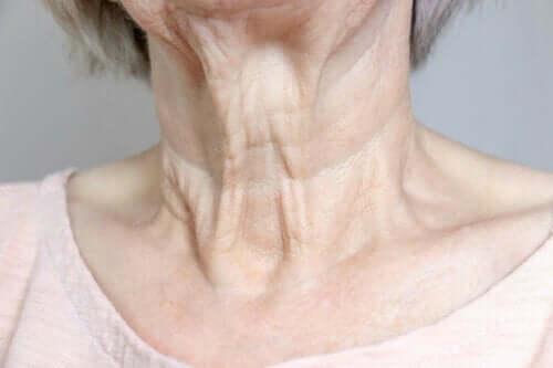 Halsfalten