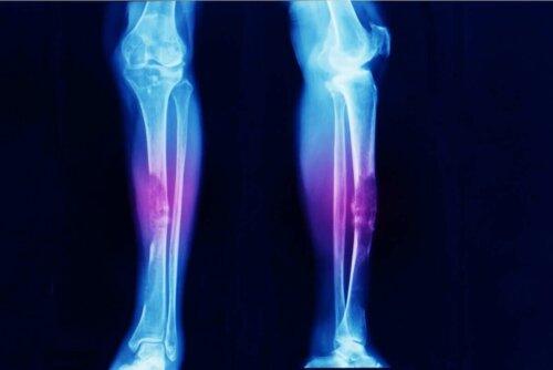 Arten von Sarkomen - Röntgenbild Unterschenkel
