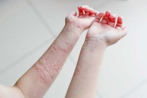 Chronische Urtikaria - Pusteln am Arm