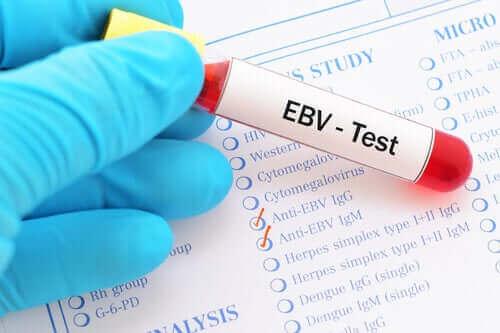 Mononukleose - EBV-Test