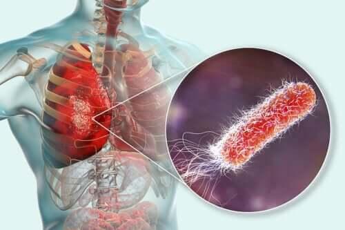 Bakterien in den Lungen? Was du darüber wissen solltest