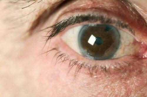 Welche Glaukomarten gibt es?