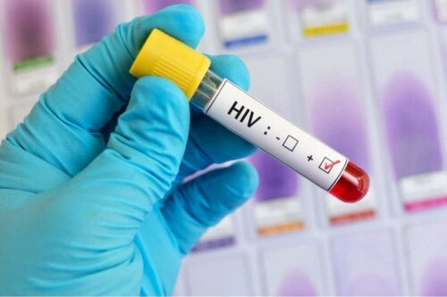 Übertragung von HIV - Test
