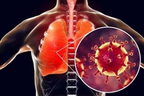 Eine Lunge mit einer Coronavirusinfektion