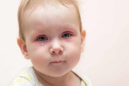 Bindehautentzündung bei Kindern: Was soll ich tun?