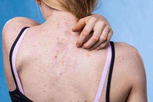Hautausschläge: 10 Arten und ihre Symptome