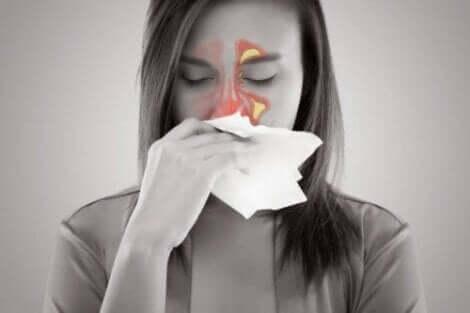 Die Sinusitis ist eine Entzündung der Nasennebenhöhlen