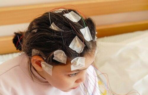 Elektroenzephalogramm Mädchen