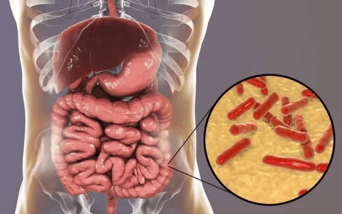 Woran erkenne ich eine gestörte Darmflora?