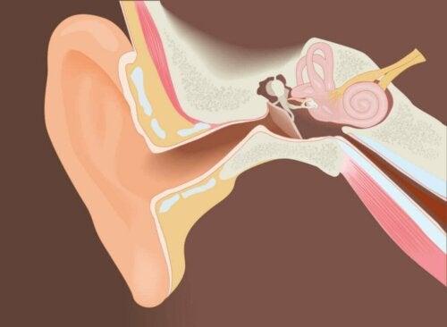 Operative Abtragung der Gehörgangsexostose