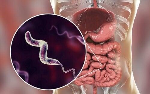 Campylobacter-Infektionen: Alles, was du darüber wissen solltest