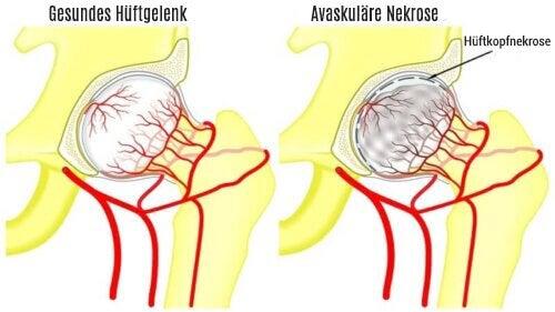 Knochennekrose des Oberschenkelknochens