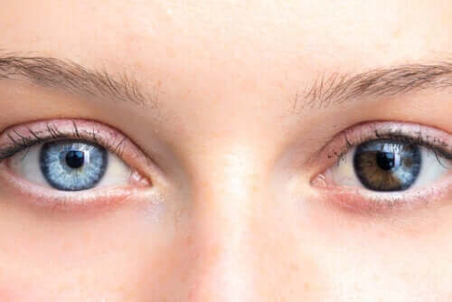 Veränderung der Augenfarbe durch Krankheiten