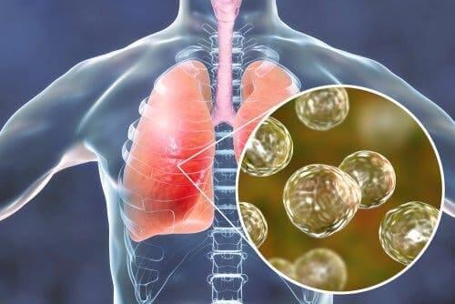Sarkoidose - Lungenentzündung