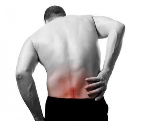 Entzündeter Ischiasnerv - Rückenschmerzen