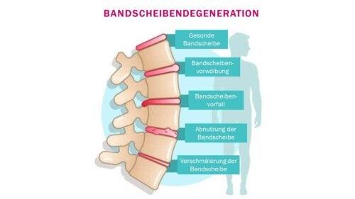 Bandscheibendegeneration: Symptome und Diagnose