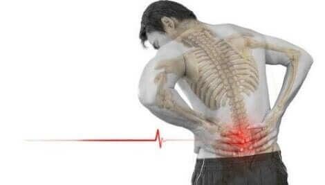 Die Wirbelverlagerung verursacht meist starke und häufig auftretende Rückenschmerzen