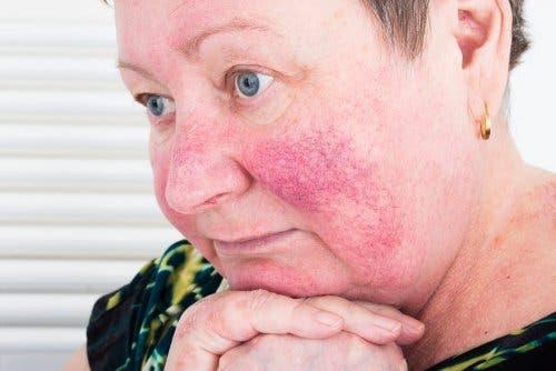 Rosazea äußert sich durch sichtbare Blutkapillaren auf der Hautoberfläche