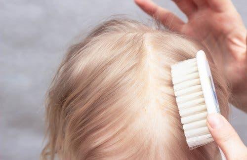 Seborrhoische Dermatitis ist nicht auf mangelnde Hygiene zurückzuführen