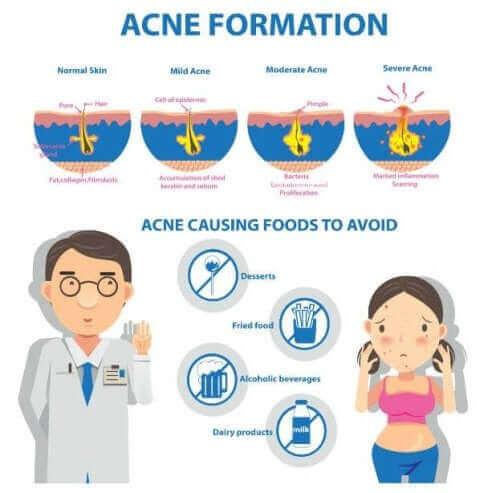 Akne Conglobata: Ursachen und Symptome